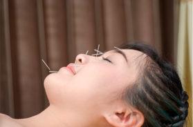 igloterapita-pri-nevrite-licevogo-nerva