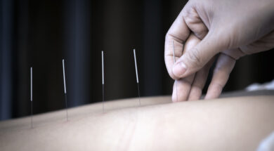 Преимущества иглотерапии: индивидуальный подход и быстрый результат